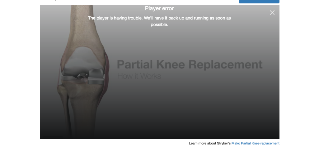 Mako partial knee replacement video