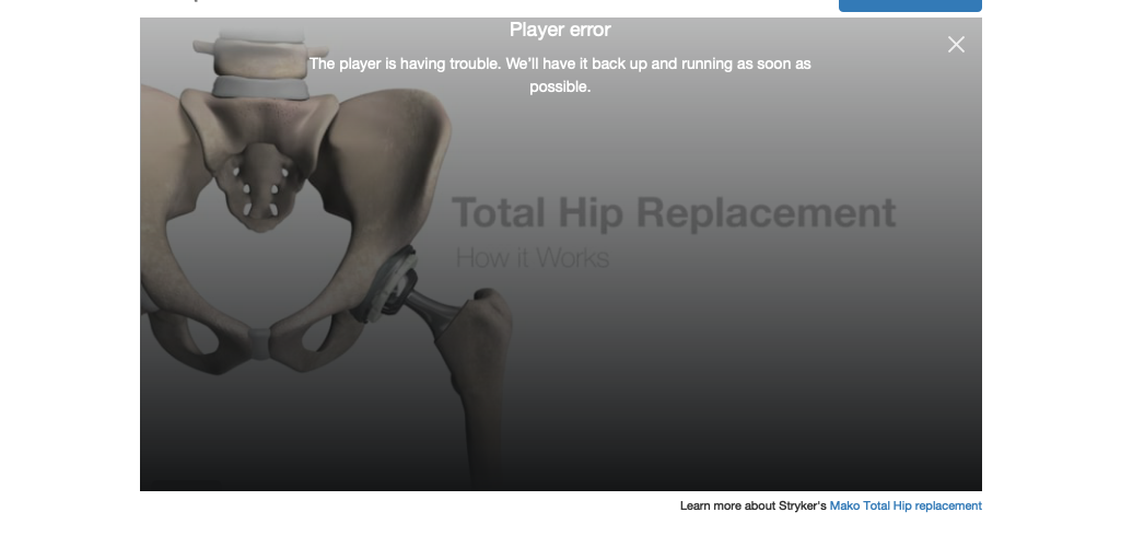Mako total hip replacement video